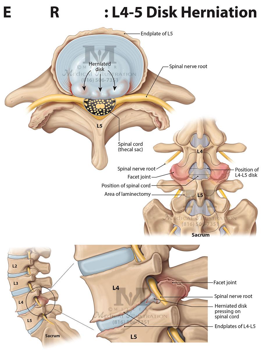 Miller Medical-Legal Illustration